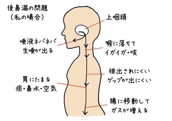 上 咽頭 炎 症状